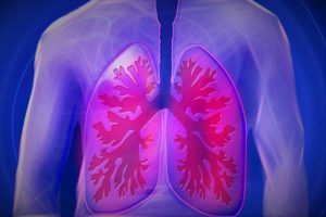 asbestos management plan and lung cancer picture